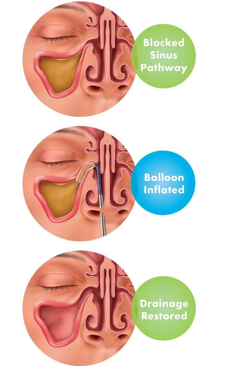 Balloon Sinus Dilation